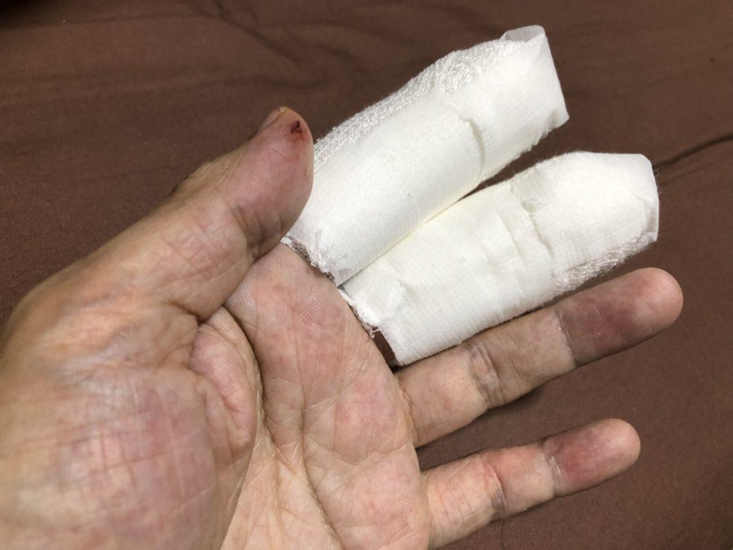 フックが指に刺さって抜けない!病院に行ってやった事と費用など